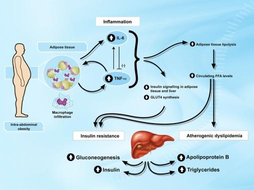 obesitas dan resistensi insulin